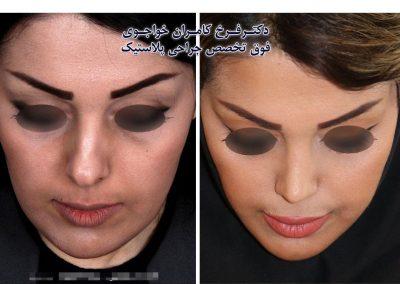 جراحی بینی در گرگان