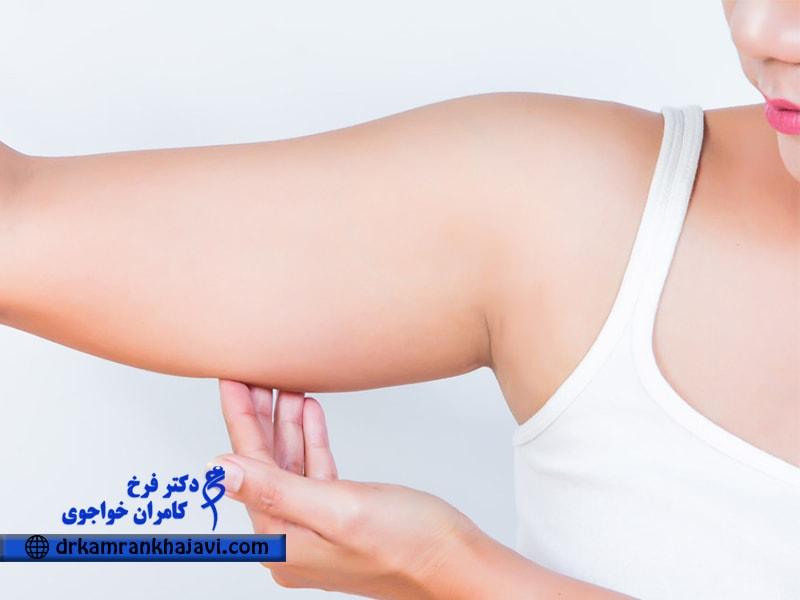 جراحی لیفت بازو، بهترین روش درمان افتادگی یا شلی بازو