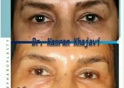 بلفاروپلاستی یا جراحی زیبایی پلک
