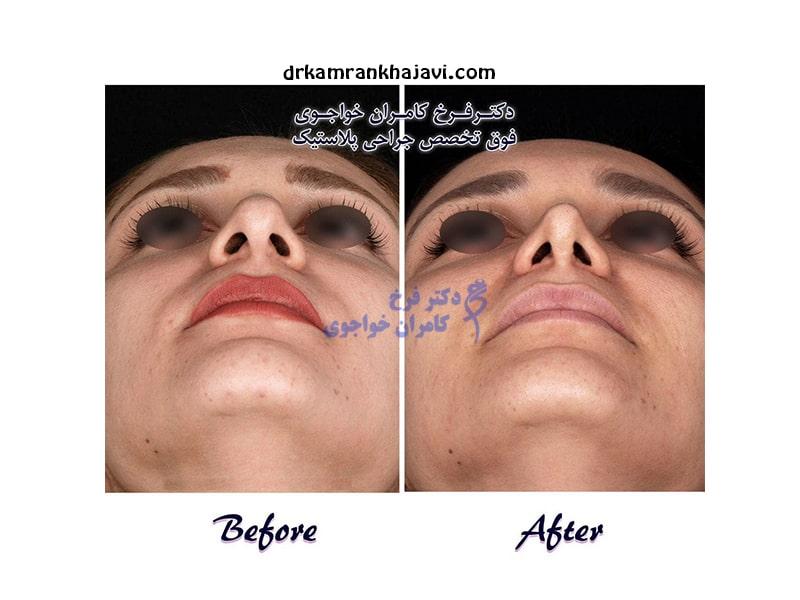 توصیه های مهم و کلیدی بعد از جراحی زیبایی بینی