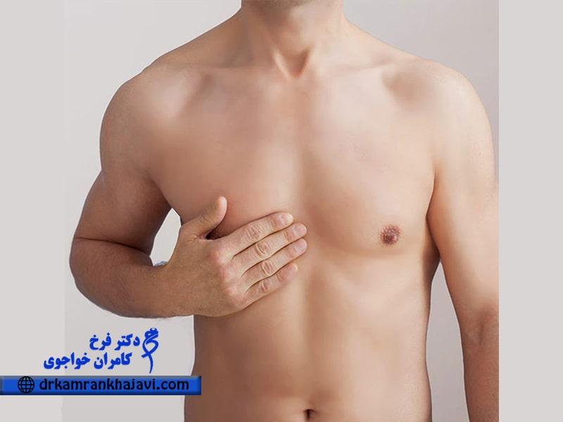 جراحی ژنیکوماستی (کوچک کردن سینه آقایان)
